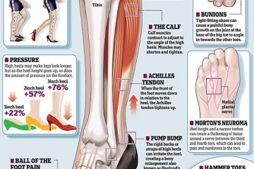 Results Of High Heel Usage